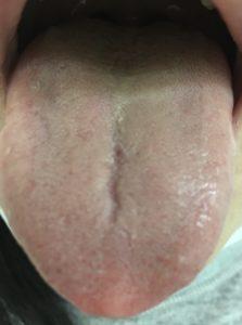 初診時の舌