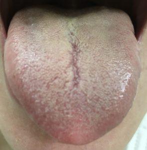 二診目の舌