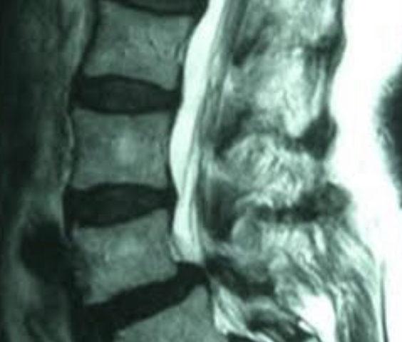 脊柱管狭窄症とリウマチ
