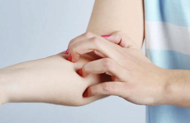 ピロリ菌除去による薬疹